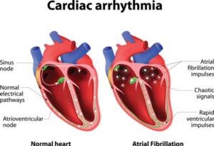 Diagram Explaining Cardiac Arrhythmia